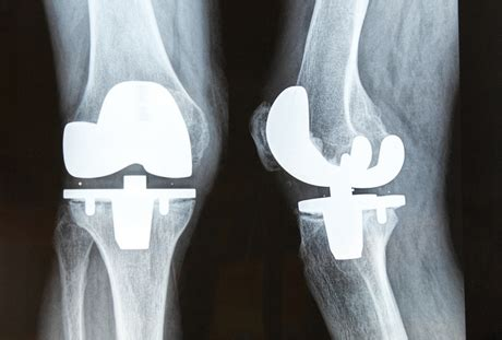 patient claims bone cement   knee replacement