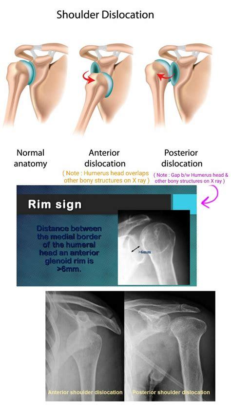 Anterior vs Posterior Shoulder dislocation on X ray ...