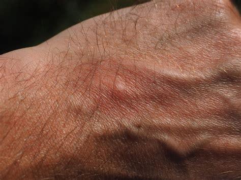 hives learn  carolina asthma allergy