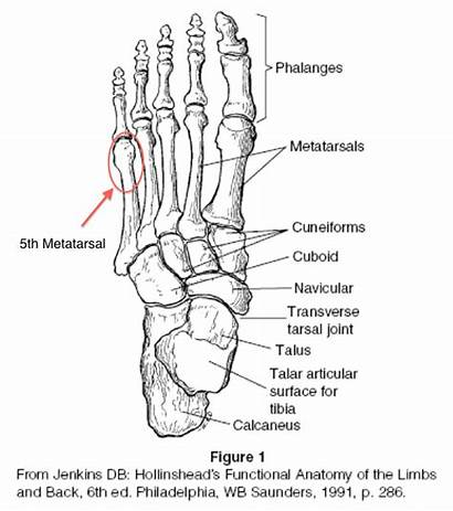 Foot Fracture Bones Ankle Types Anatomy Metatarsal