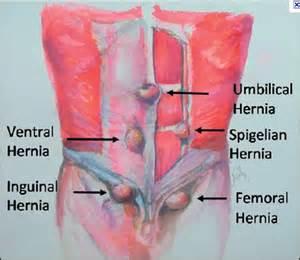 Ventral Hernia Repair Surgery