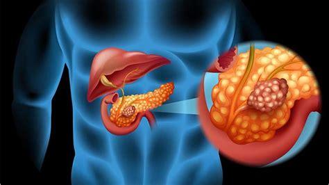 es el cancer de pancreas sintomas causas  como
