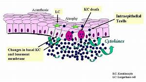 Pathogenetic Aspects Of Oral Lichen Planus