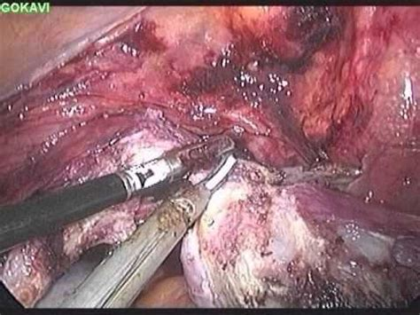 Total laparoscopic hysterectomy for a large uterus with ...