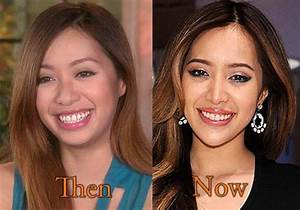 Michelle Phan Plastic Surgery Before and After Pictures ...