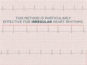 Come Calcolare la Frequenza Cardiaca dall'ECG - wikiHow