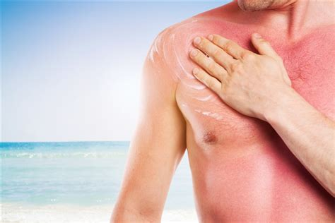 Best Thing For Sunburn How To Prevent And Treat A Sunburn