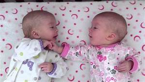 Image Gallery identical twin babies