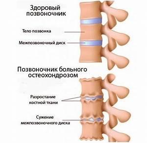 Остеохондроз шейного отдела позвоночника причины и лечение