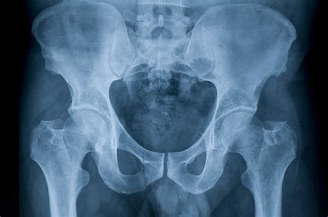 Hip X Images Hip Joint Anatomy X Gallery