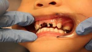 Tooth decay crisis: Dentists plead with parents to reduce ...