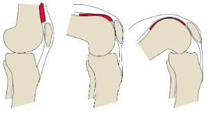 articular capsule   knee joint orthopaedicsone