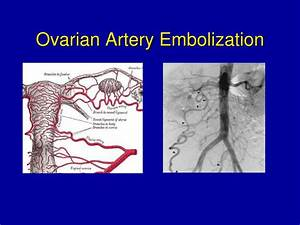 PPT - Interventional Radiology in the Treatment of ...