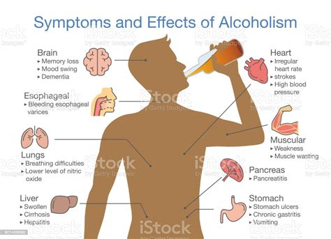 symptoms  effects  alcoholism patient stock