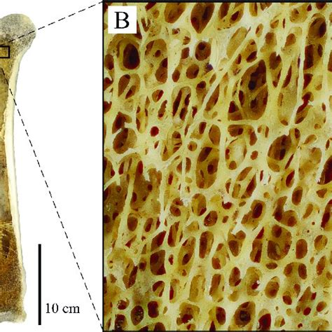 Cancellous Bone Occurrence And Macrostructure As
