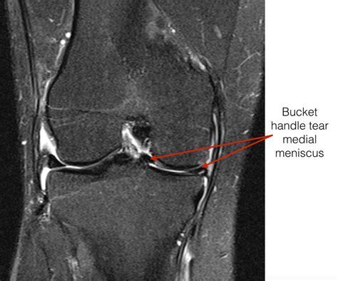 Knee Arthroscopy Patient Information