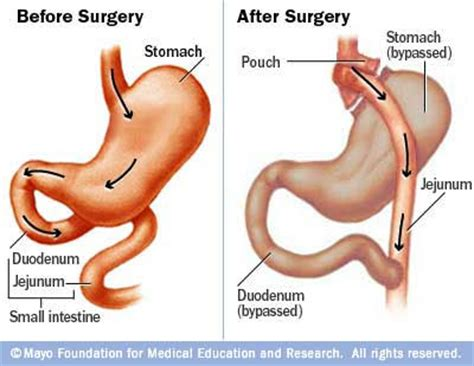 Hair Loss After Bariatric Surgery  Hair Loss Treatment. List Of Veterinary Schools In California. Reverse Mortgage Age Requirement. Locksmith Coral Springs Window Graphic Design. How Much For Homeowners Insurance. Accelerated Lpn To Rn Programs In Nj. Future Of Tv Advertising Mobile Commerce Bank. Toyota Dealers In Melbourne Easy Data Base. Wrongful Termination Lawyers In Los Angeles