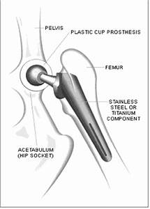 How the ASR XL Acetabular System is Constructed