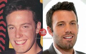 New Teeth Of Ben Affleck Plastic Transformations