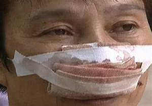 Man Bites Off Estranged Wife U0026 39 S Nose For Not Answering His