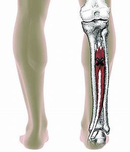 Knee Trigger Point Charts Tibialis Posterior