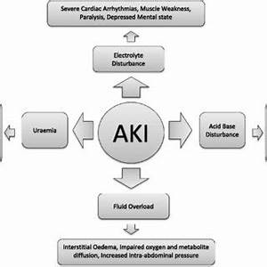 (PDF) Acute kidney injury: Short-term and long-term effects