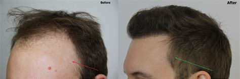 importance  temple points  hair restoration dr