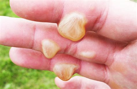 Burn Typeslevels Home Remedies And Treatment For Minor Burns