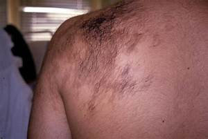 BENIGN SKIN LESIONS, NEVI, CYSTS - Becker's naevus picture ...