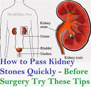 How to Pass Kidney Stones Quickly - Before Surgery Try ...