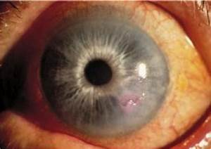 eye lecture Flashcards - Easy Notecards  Ulcer Corneal ulcers and infections