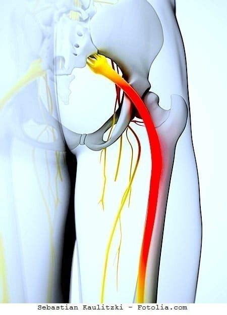 dolore interno braccio sinistro dolore al gluteo destro e sinistro e gamba anca sciatica