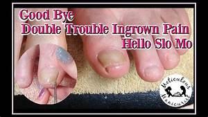 Double Trouble Ingrown Toenail Treatment  Ud83d Udc63 U2b50