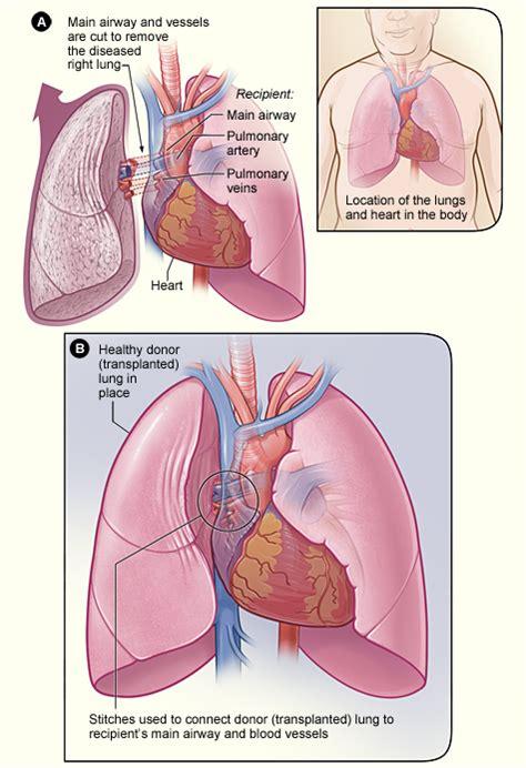 lung transplantation wikipedia