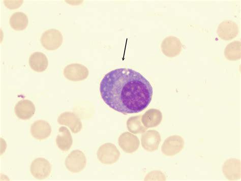 Plasma Cell Causes Symptoms Treatment Plasma Cell