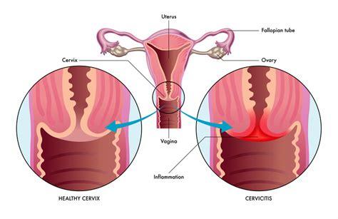 Cervicitis - Harvard Health