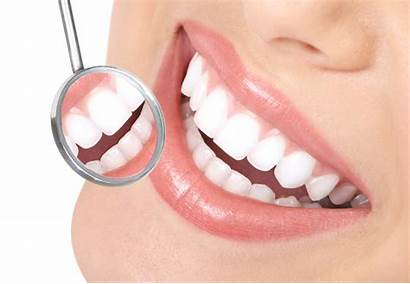 Dental Care Bangalore