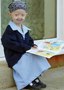 progeria children ~ Christine O'Donnell