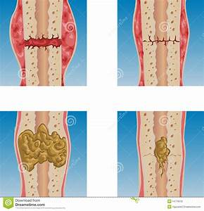 Bone Fracture Royalty Free Stock Images