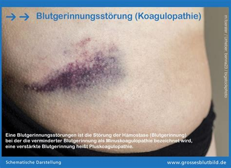 blutgerinnungsstoerungen koagulopathie dr stephan