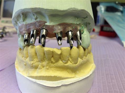 Hair Implants Clifton Nj 07013 Implant Dentistry2 Dr Edward Doctorman
