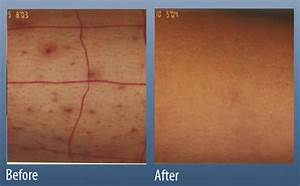 Folliculitis - Main Line for Laser Surgery in Ardmore, PA