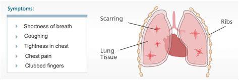 list  asbestos related diseases