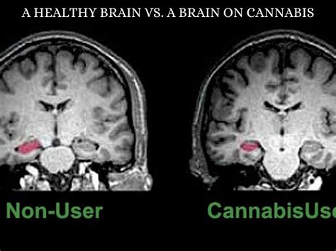 Negative Effects Of Marijuana On Daily Life By