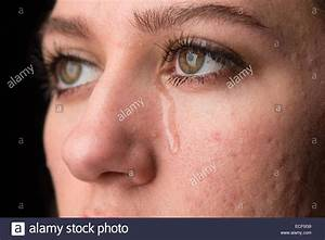Young Woman With Acne Crying With Tears Running Down Her