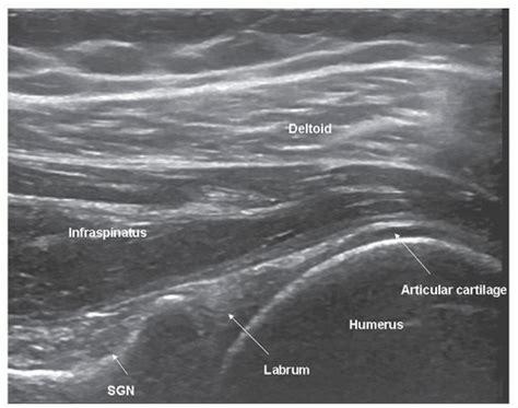 Shoulder   Radiology Key