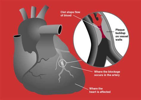 acute coronary syndrome wikipedia