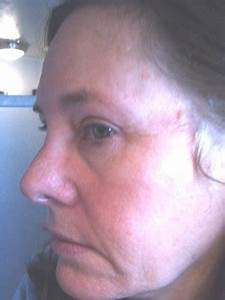 What is the Best Facial Procedure to Address the Drooping ...
