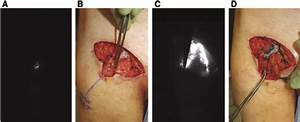 Initial Infrared Groin Imaging After Injection Of Icg