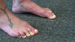Intrinsic Foot Muscle Training